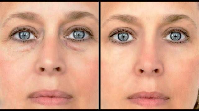 мешки под глазами до и после процедуры