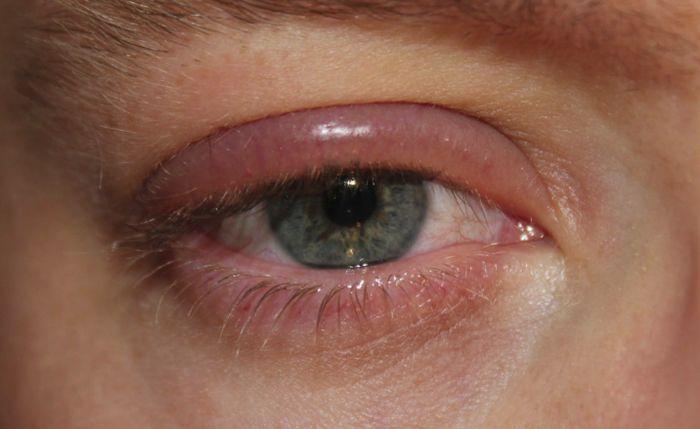 Отеки вокруг глаз из за аллергии глаз thumbnail