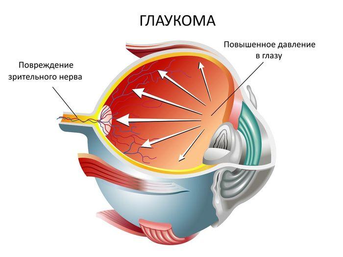 офтальмологическое заболевание