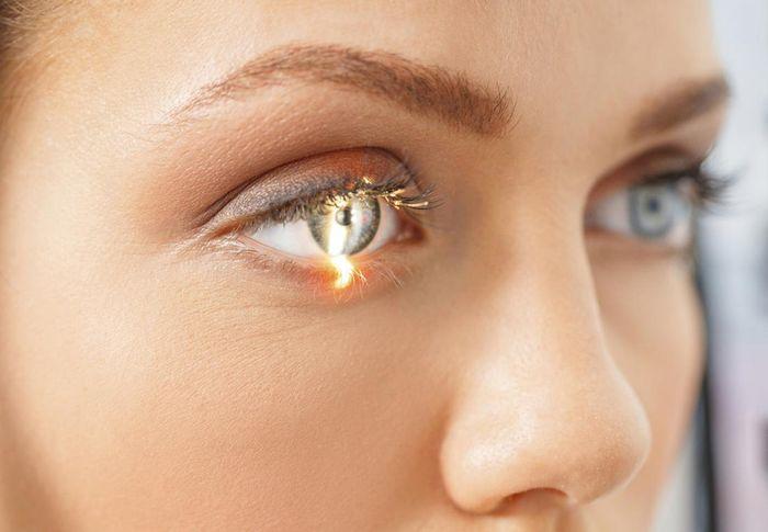 Лазерная коррекция глаза
