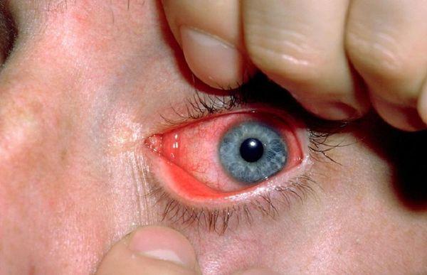 Больной покрасневший глаз
