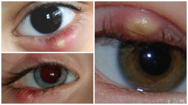 Халязионы на глазах