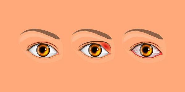 Заболевание глаза Ячмень