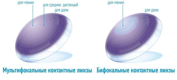 Мультифокальные и бифокальные контактные линзы