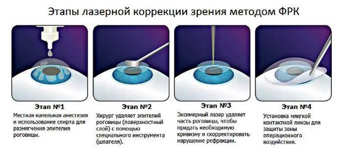 Техника операции ФРК (PRK)