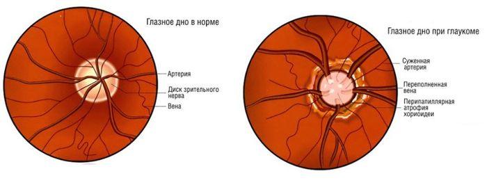 Глазное дно при глаукоме