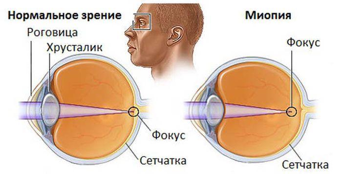 Близорукость (миопия) причины