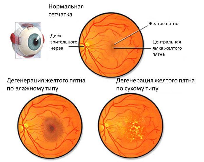 Макула (желтое пятно) глаза