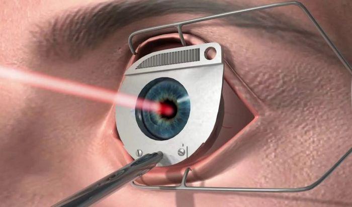 Лазерное воздействие на глаз