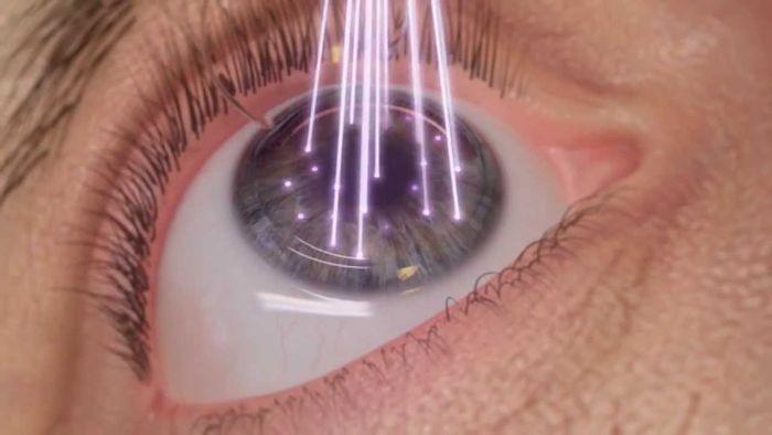 Воздействие лазера на глаза