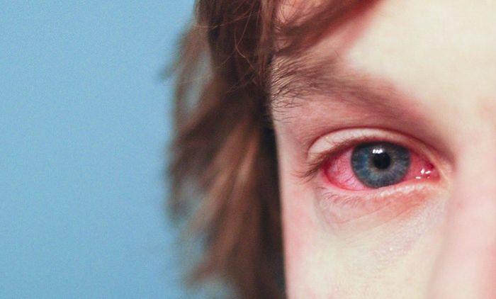Аллергический конъюктивит у мальчика