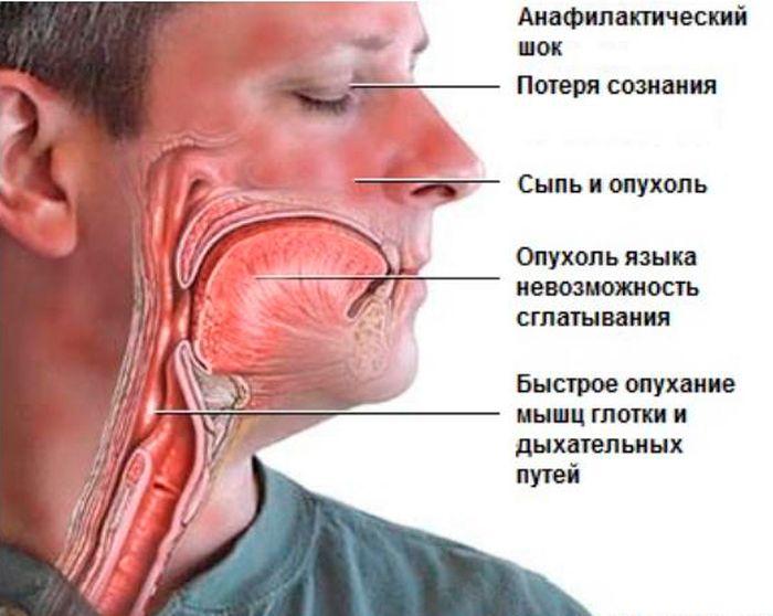 ангионевротическая реакция