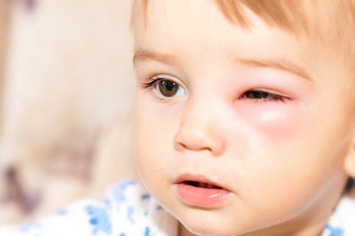 Опухший глаз у малыша