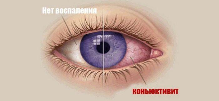 Здоровый глаз и глаз с коньюктивитом