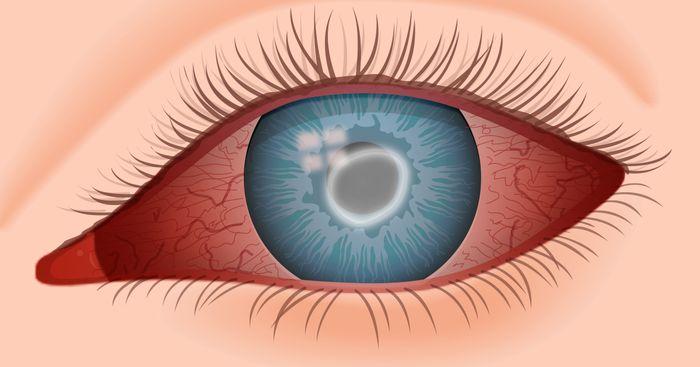 Кератит - воспаление роговицы.