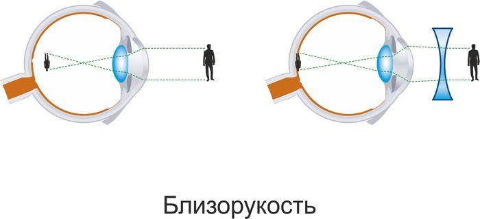 Причины близорукости