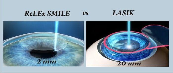 технология ReLEx SMILE