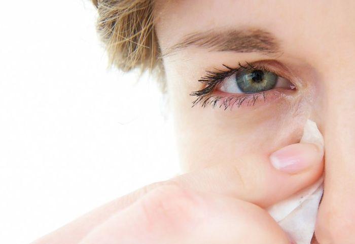 Симптомы гордеолума на глазу