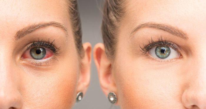 Покраснение глаза при коньюктивите