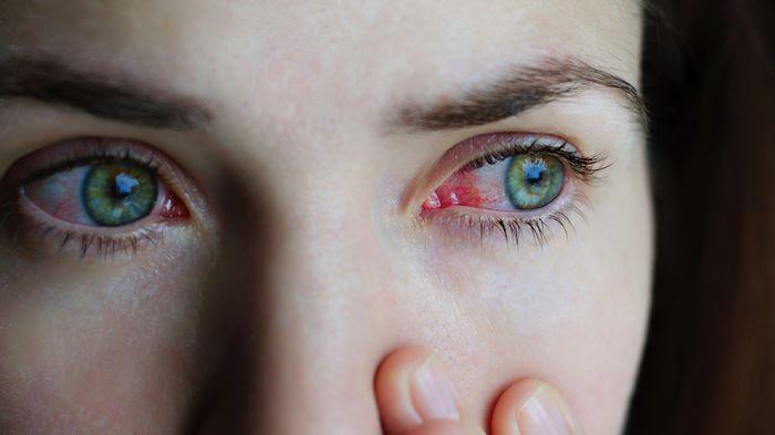 Покрасневший глаз у женщины