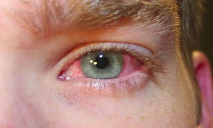 Покраснение глаз у мужчины