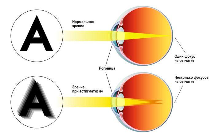 Схема зрения при астигматизме