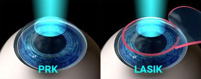 Виды операций на глазах