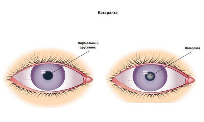 Помутнение хрусталика глаза - катаракта