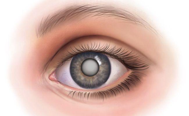 Заболевание глаз – катаракта