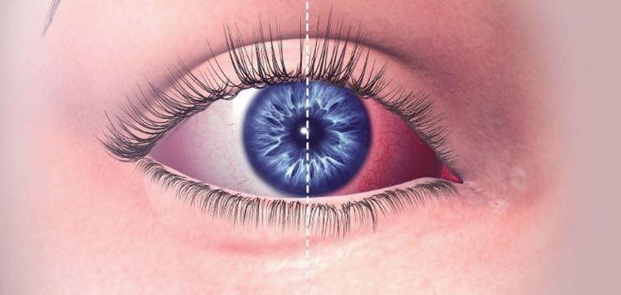 Коньюктивит заболевание глаз