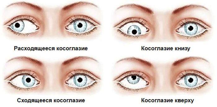 Нарушение правильного положение одного или обоих глаз