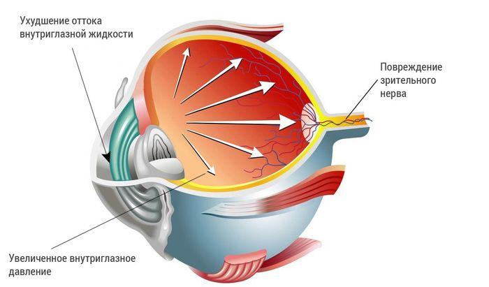 Операция по удалению глаукомы