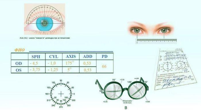 Расшифровка рецепта на очки