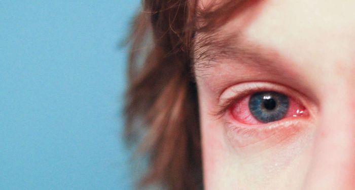 Красные склеры глаз у мальчика