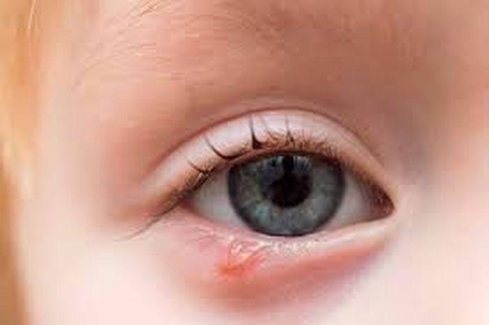 Гордеолум на глазу у ребенка