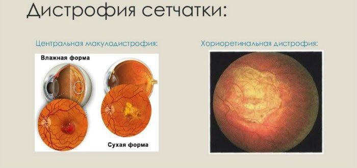 Дистрофию сетчатки