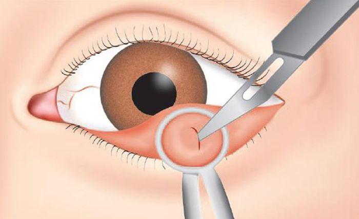 Удаление халязиона хирургическим методом