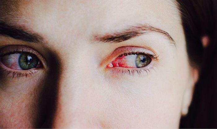 Дискомфорт в глазах и покраснения