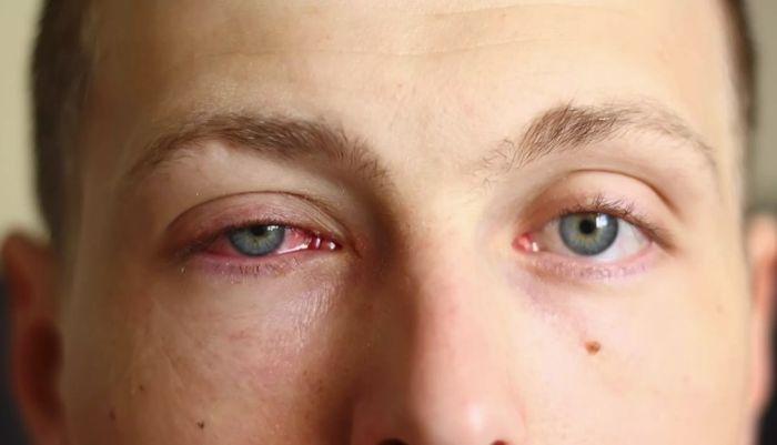 Заболевание глаз коньюктивит