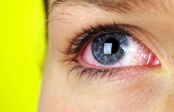 Красные и раздраженные глаза