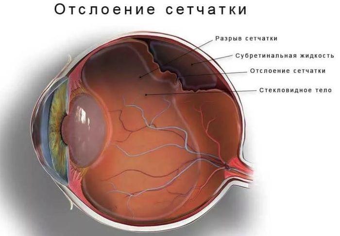 Сетчатка глаза - отслоение