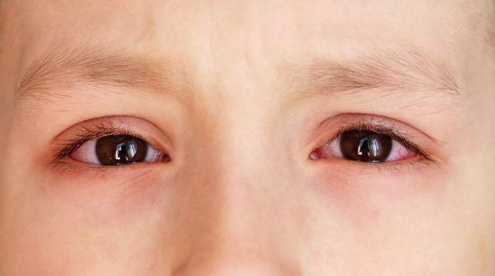 Аллергический коньюктивит у мальчика