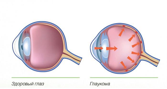 Здоровый глаз и глаукома
