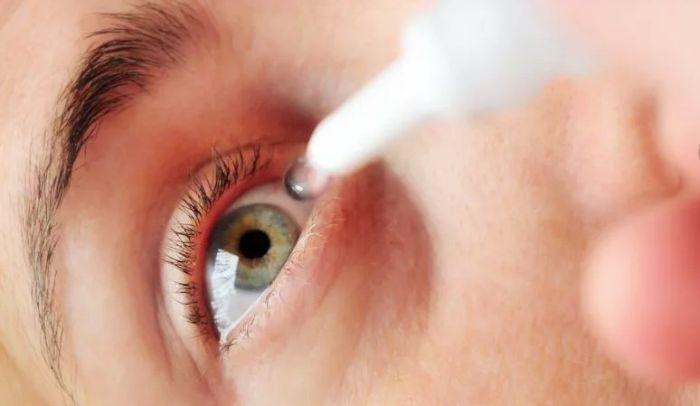 Лечение коньюктивита глазными каплями