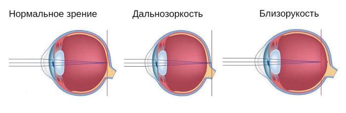 Близорукий и дальнозоркий глаз