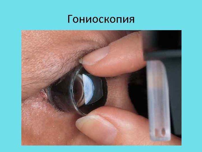 Глаукома гониоскопия