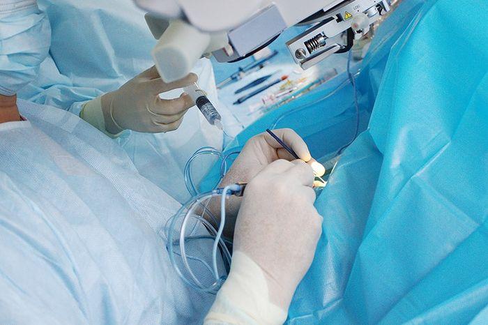Ход операции по катаракте