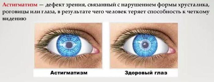 Заболевание глаз астигматизм