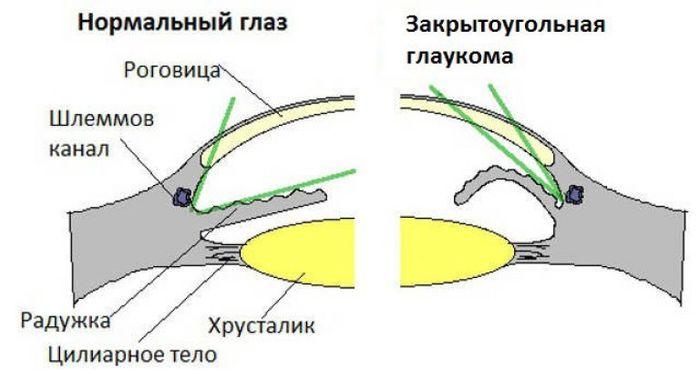 Схема закрытоугольной глаукомы