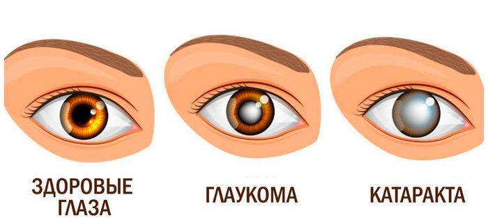 Заболевание глаз - катаракта и глаукома